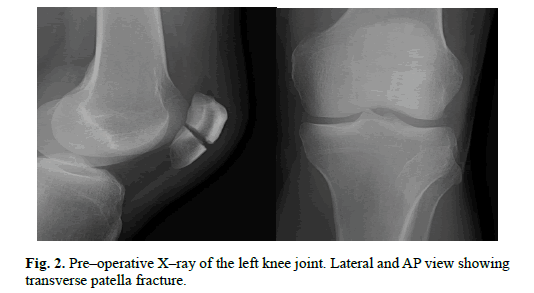 Orthopaedics-Trauma-Surgery-Related-Research-transverse-patella