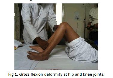 Orthopaedics-Trauma-Surgery-Gross-flexion-deformity-hip