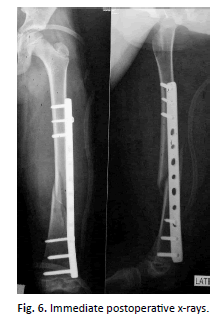 Orthopaedics-Trauma-Surgery-Immediate-postoperative-x-rays