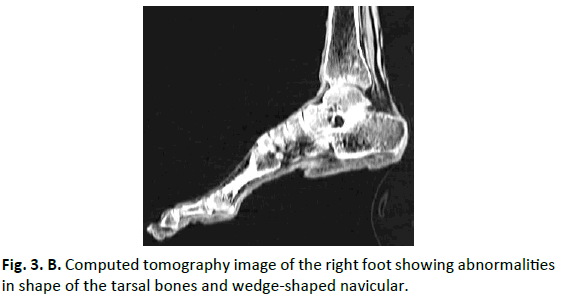 Orthopaedics-Trauma-Surgery-Related-Research-Computed-tomography