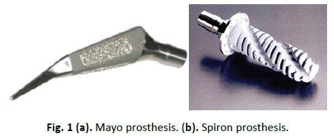 Orthopaedics-Trauma-Surgery-Related-Research-Mayo-prosthesis