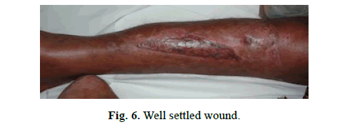 Orthopaedics-Trauma-Surgery-Related-Research-Well-settled-wound
