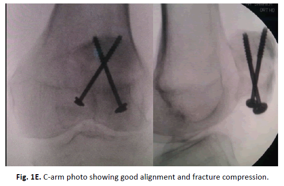 Orthopaedics-Trauma-Surgery-Related-Research-fracture-compression