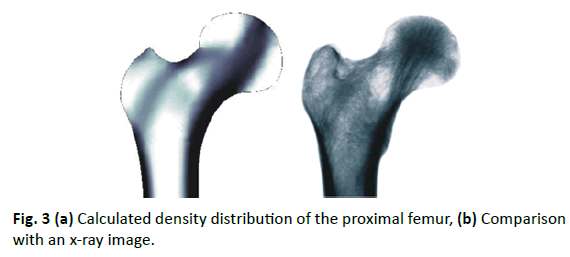 Orthopaedics-Trauma-Surgery-Related-Research-proximal-femur