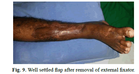 Orthopaedics-Trauma-Surgery-Related-Research-removal-external-fixator