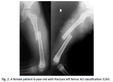 Orthopaedics-Trauma-Surgery-fracture-left-femur-AO-classification