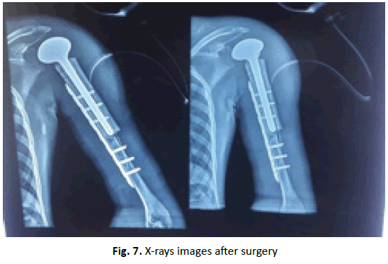 Orthopaedics-Trauma-Surgery-images